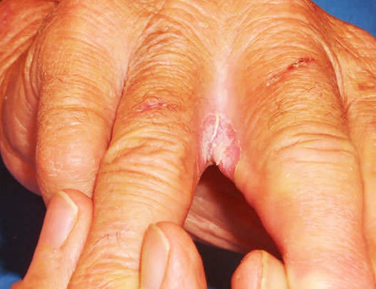 How Does Diabetic Skin Rash Look Like?