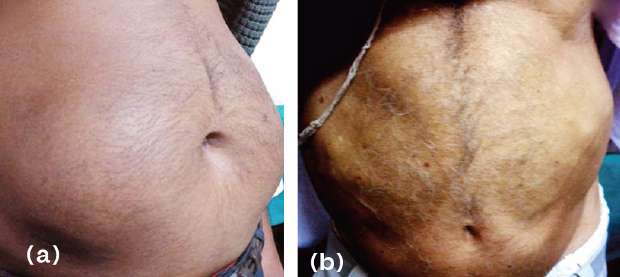 lipohypertrophy and lipoatrophy pics