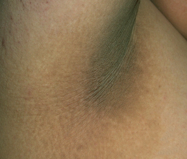 Acanthosis Nigricans on the Armpit image