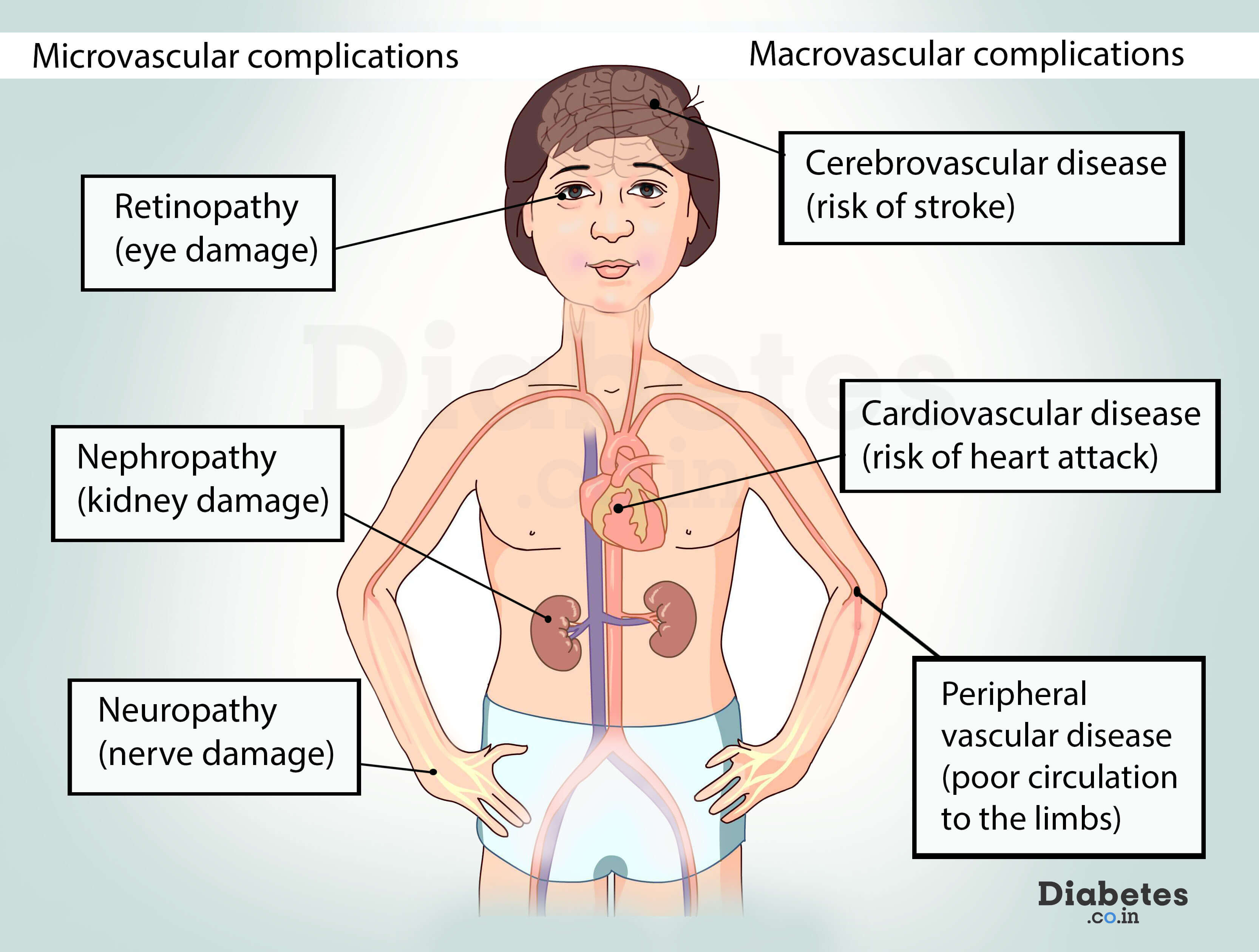 diabetes systemic complications microvascular and macrovascular